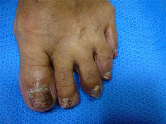 Toenail Fungus - Foot Doctor San Diego