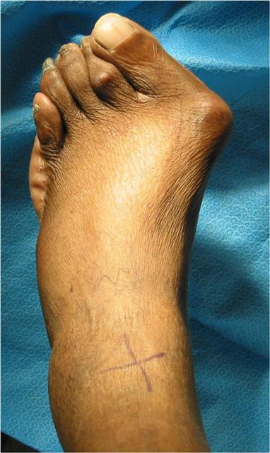 Удаление косточек на ногах лазером  плюсы и минусы